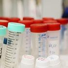 В Исландии зарегистрирован случай заражения двумя штаммами вируса COVID-19