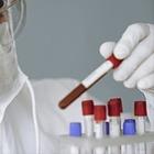 Ситуация с пневмонией в Мангистауской области: В провизорных центрах находится 450 заболевших