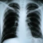 Человека впервые просканировали на цветном рентгене