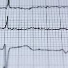 Обнаружена связь между личностными качествами и риском смерти